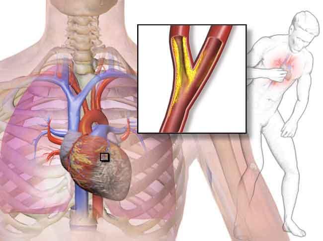 Figura 7. La obstrucción de la arteria coronaria produce dolor de angina de pecho.