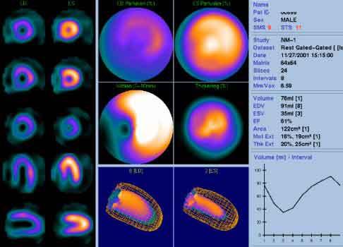 Figura 10. Resultado de la prueba de esfuerzo con talio, en color sobre fondo azul identifica las regiones del músculo cardiaco con falta de irrigación sanguínea.