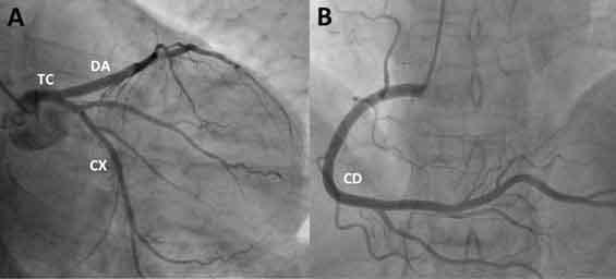 Figura 13. Coronariografía.