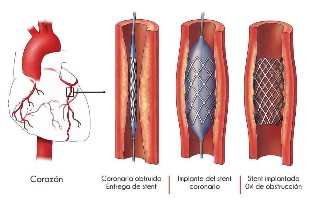 Figura 16. Esquema que indica los pasos para implantación de un estent.