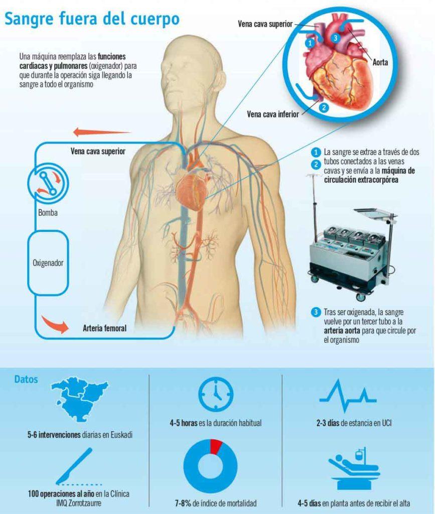 Figura 20. Mediante la circulación extracorpórea se puede detener la actividad eléctrica del corazón para efectuar la técnica de revascularización coronaria.