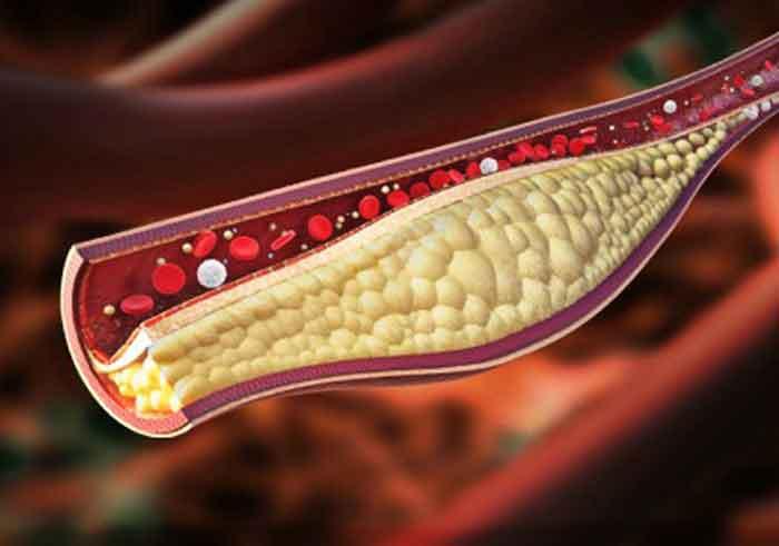 Figura 1. Arteriosclerosis. Deposito de grasa en las arterias.