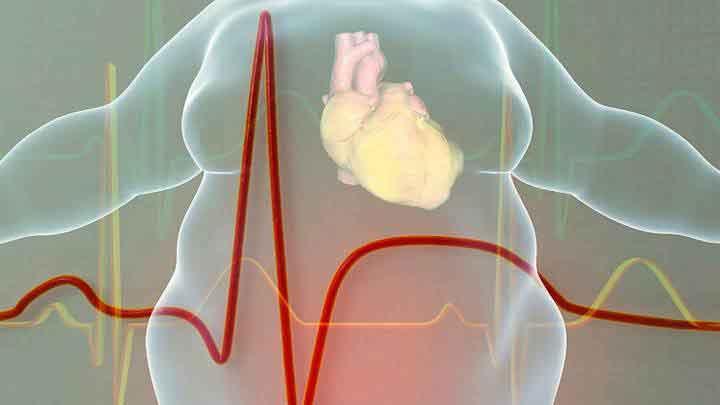 Figura 1. La obesidad predispone a múltiples enfermedades, entre ellas las de corazón.