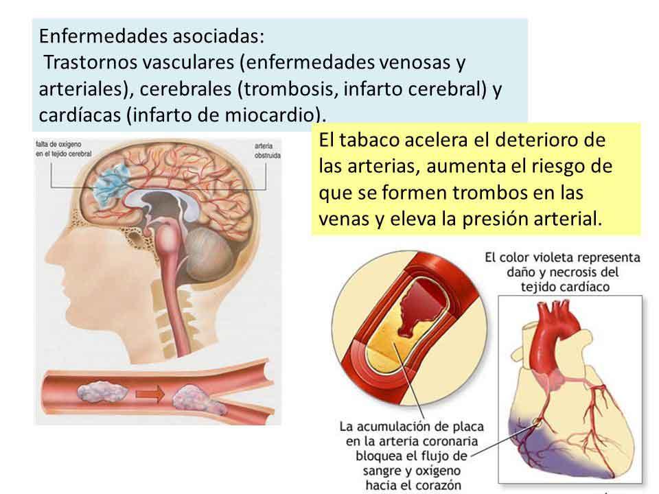 Figura 3. El tabaco predispone a la formación de trombos en las arterias.
