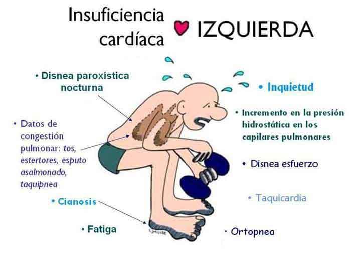 0901-Insuficiencia-cardiaca-iquierda