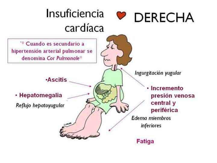 Figura 2. Insuficiencia cardíaca derecha