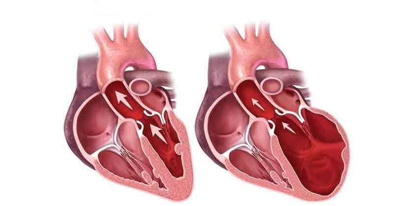 Figura 3. Corazón normal y miocardiopatía dilatada.