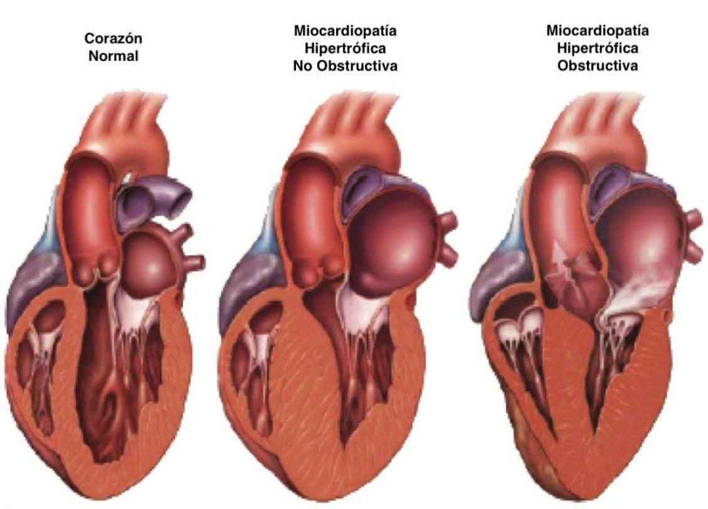 Figura 4. Corazón normal y miocardiopatía hipertrófica.