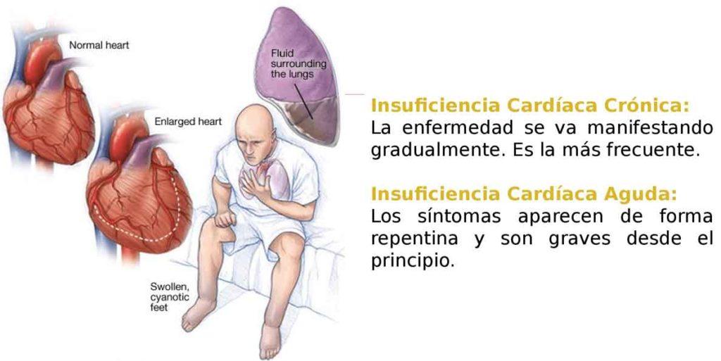 Figura 5. Síntomas de insuficiencia cardiaca según la forma de presentación.