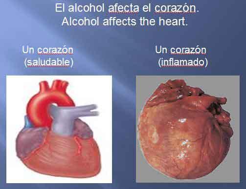 Figura 1. El consumo de alcohol puede llevar a insuficiencia cardiaca.